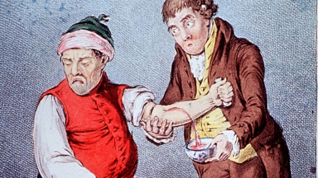 Photo: http://cdn.history.com/sites/2/2015/06/hith-bloodletting-E.jpeg